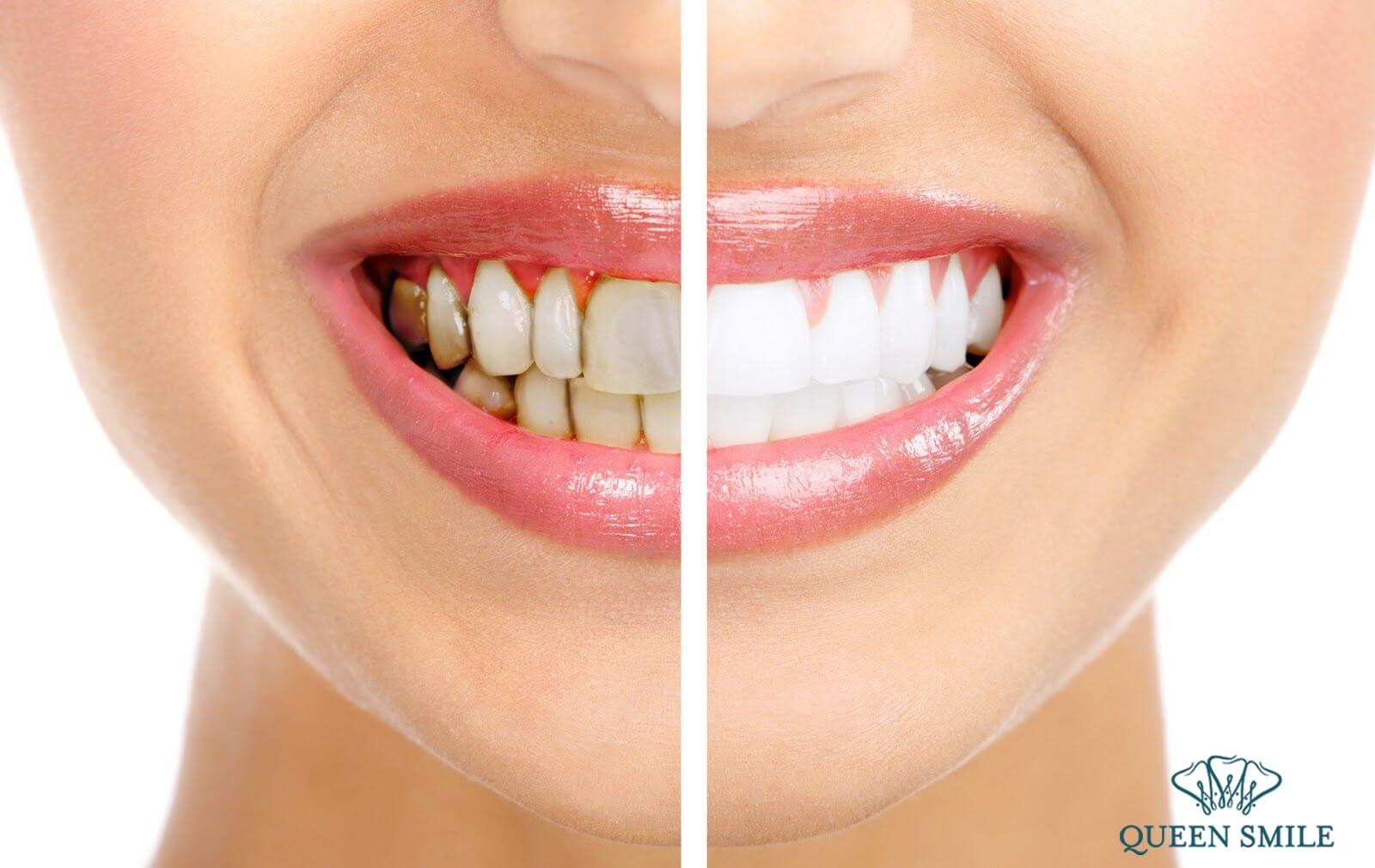 kết quả tẩy trắng răng